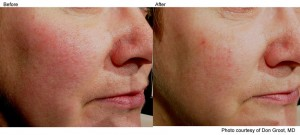 Laser Genesis Treatment to improve complexion