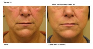 Titan Laser Facial Treatment - Wilmington NC