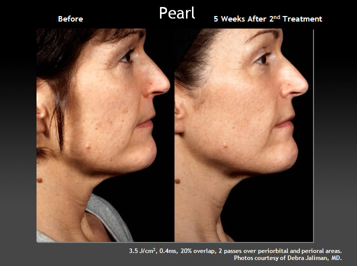 Pearl Laser Facial for Age Management