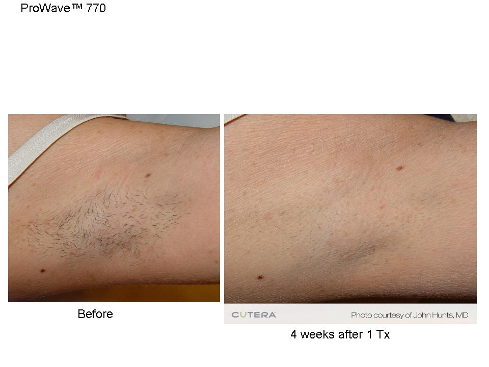 Laser Hair Removal in Wilmington NC