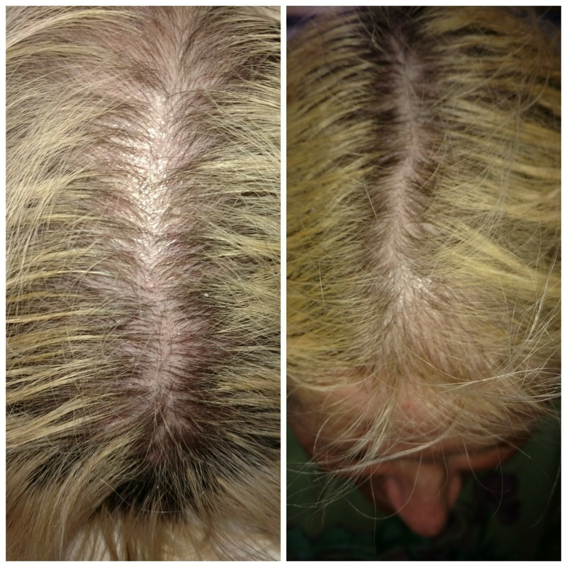 PRP for hair Loss Wilmington NC